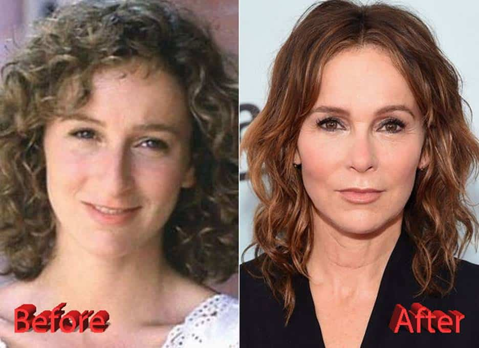 Jennifer Grey Facelift Before And After