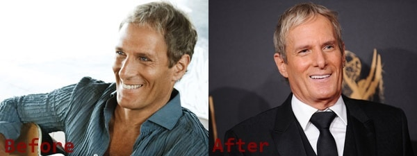 Michael Bolton Plastic Surgery Before and After Photos